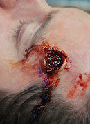 Bullet Wound Prosthetic