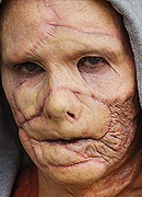 Burn / Facial Trauma Prosthetic