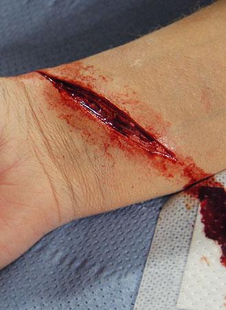 Cut Wrist Prosthetic