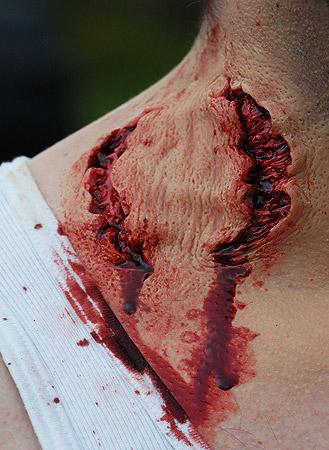 zombie bite prosthetics