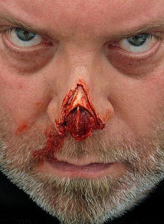 shredded nose tip prosthetic