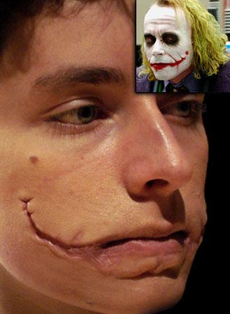 joker prosthetics