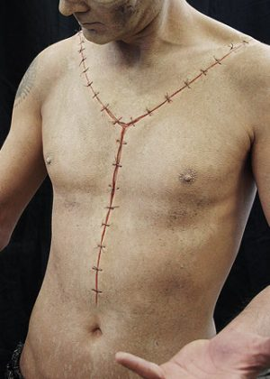 autopsy scar prosthetic