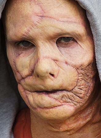 burn victim prosthetic