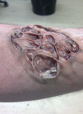 Infected Wound Prosthetic