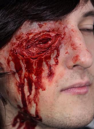 Shot Out Eye Prosthetic