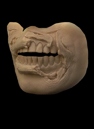 exposed teeth zombie prosthetic
