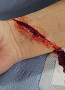 Cut_Wrist_Prosth_4f13e464c8cc4