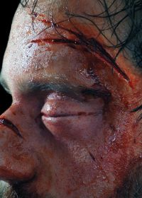 Broken Nose Prosthetic - Ready Made and Easy to Apply