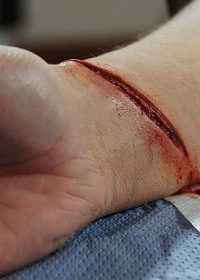 cut-wrist