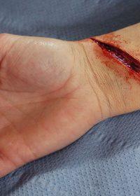 cut-wrist-prosthetic