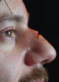 nose-prosthetic4f13ca7045782