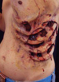 Zombie Ribs Prosthetic