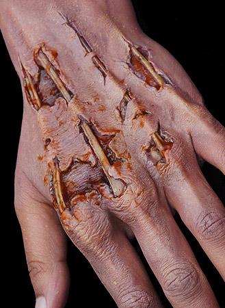 Zombie Hand Prosthetics