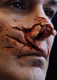 car crash prosthetic