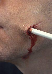 arrow wound prosthetics